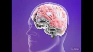 E-action info - tonic clonic seizure (generalized seizure)
