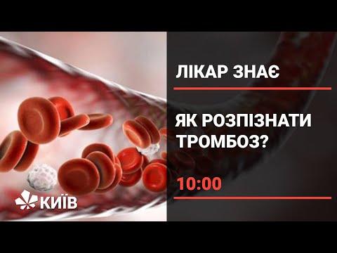 Телеканал Київ: Тромбоз: чим небезпечні тромби і чому вони виникають?