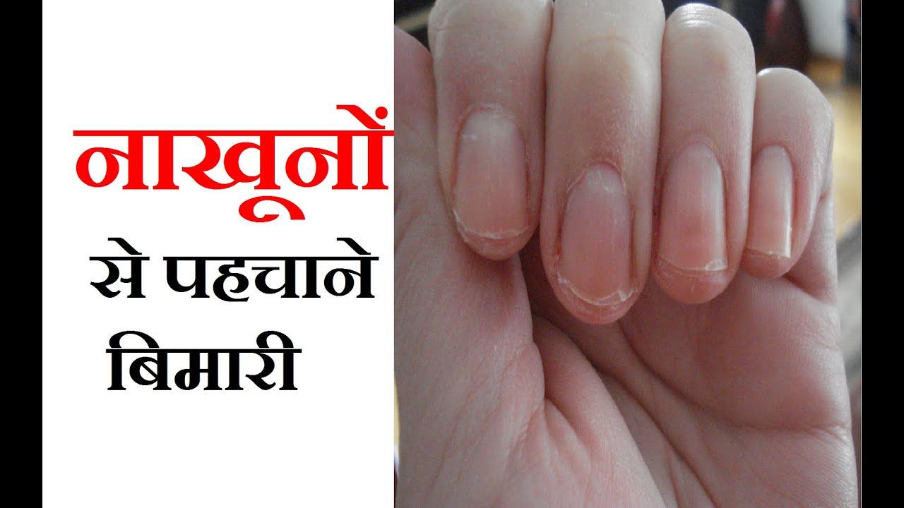 नाखूनों से पहचाने बिमारी | Your Nails Can Say ...