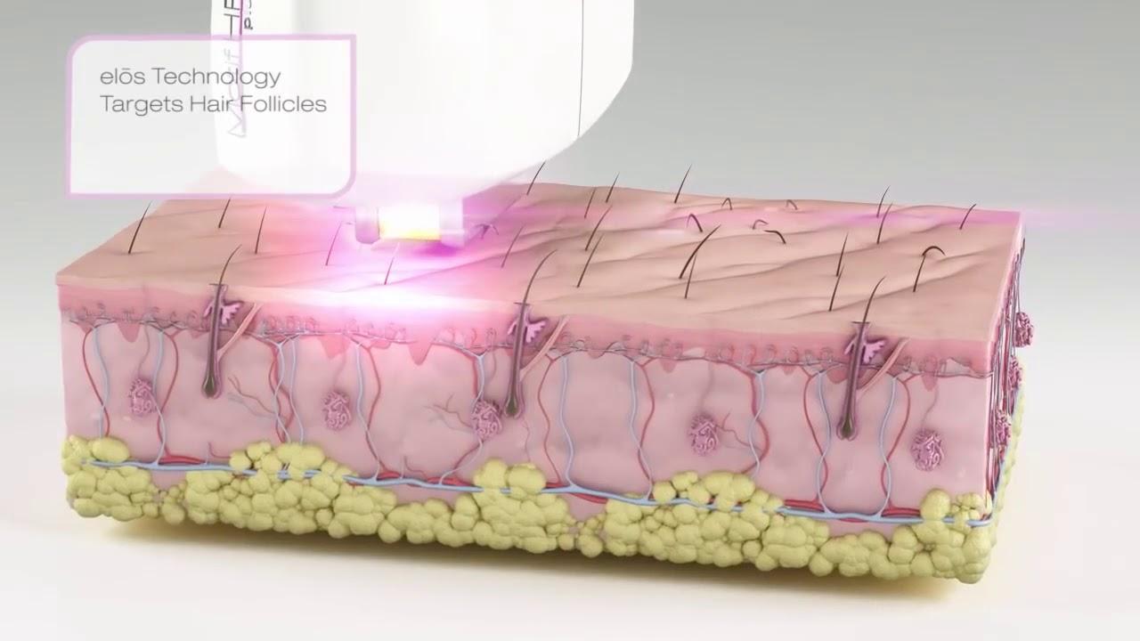 tipuri de epilare în varicoză durerea varicoasă în picior este