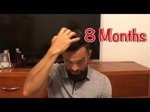 8-months- -2nd-procedure- -hair-medical-restoration- -tijuana- -8-months-minoxidil-use