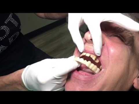 Houston Cosmetic Dentist: Snap-on Smile and Men..chipped, gaps, yellow teeth