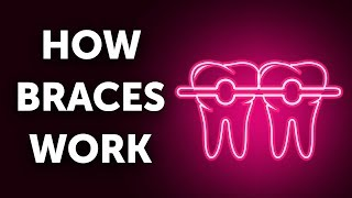 How Braces Work (And Why So Slow)