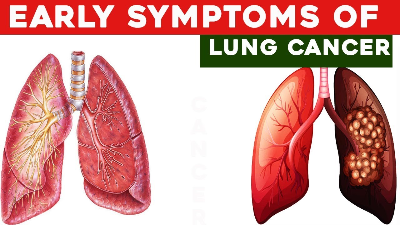 5 Early Warning Signs of Lung Cancer You Shouldn\'t Ignore - YouTube