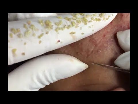 Acne extractions|Blackheads,Whiteheads, Pimples And Cystic Acne Extraction Facial Treatment