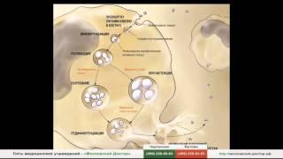 видео Баланопостит у мужчин: виды и причины болезни