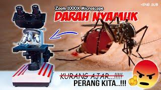 Download lagu DARAH KITA DI PERUT NYAMUK | Mosquito Blood in Microscope Zoom 1000X