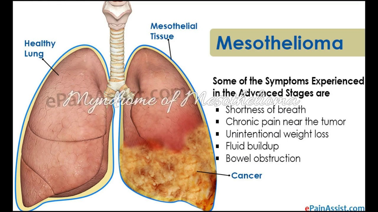 malignant pleural mesothelioma cause and death rate youtubemalignant pleural mesothelioma cause and death rate