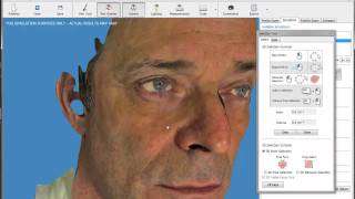 Nose Job (Rhinoplasty)3D Virtual Simulator -freehand nose reshaping tool with AxisThree software
