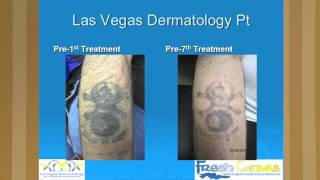 Dr. H.L. Greenberg Tattoo Removal Lecture at Mario Barth's Biggest Tattoo Show on Earth-Chapter 4 Thumbnail