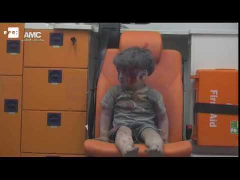 La imagen de un ni�o herido muestra el drama de los bombardeos en Siria
