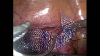 Лапароскопическая сакроцервикопексия