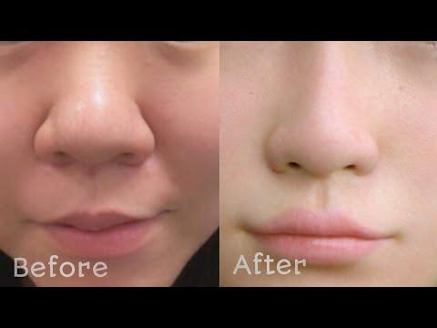 10 मिनट में मोटी और बड़ी नाक को बनाइए सुंदर और आकर्षक। How to get rid big nose, beautiful nose