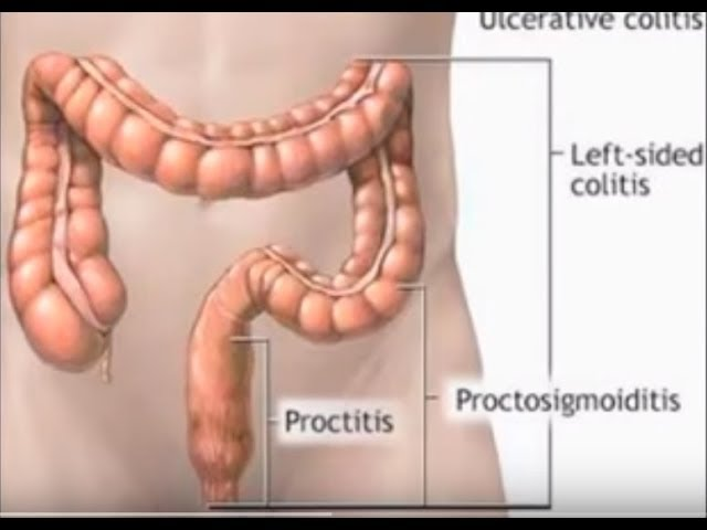 Kialakulhat a prosztata gyulladása a proctitis miatt