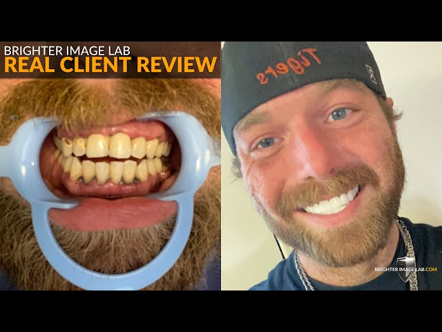 Brighter Image Lab Real Client Review - No Dentist, No Waiting Smile Makeovers for Men - See Why!