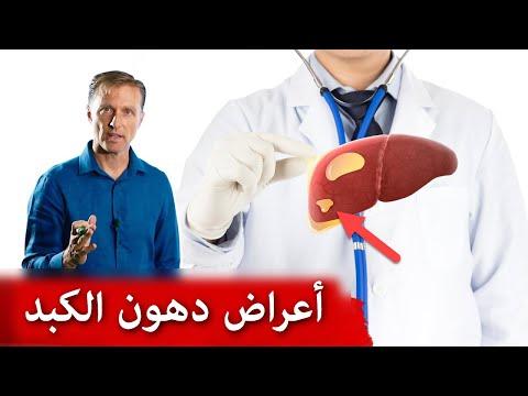 ماهي اول أعراض تراكم الدهون في الكبد تشحّم الكبد