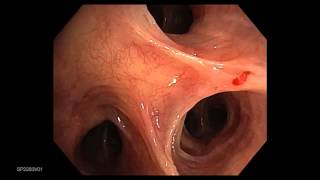 Bronchoscope HDTV Clinical Video Clip-Olympus BF-190 Bronchoscopes