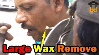 ►Ear Wax Cleaning I Street Style