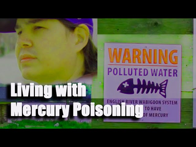 Grassy Narrows First Nations  - Mercury Poisoning Survivor - Shane Pennells