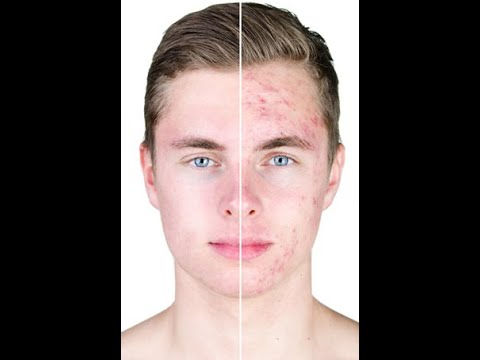 can whey protein cause acne , can creatine cause acne , how does