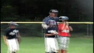 broken arm in baseball