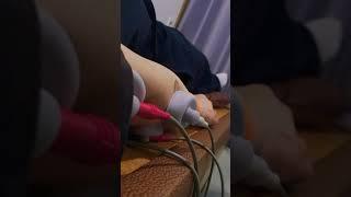 테니스 엘보 전기치료