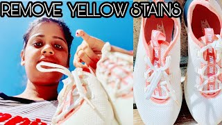 REMOVE YELLOW STAINS FROM WHITE 👟 SHOE Style By Ritu