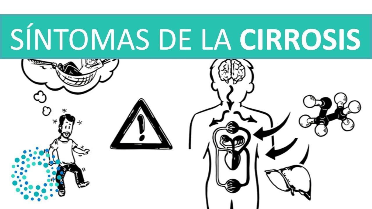 Cirrosis en el higado sintomas