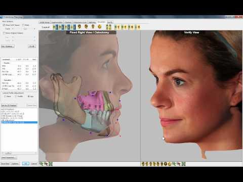 3D Visual Treatment Objective (VTO) Software Demo