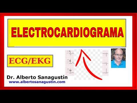 ELECTROCARDIOGRAMA Explicado FÁCIL #ECG