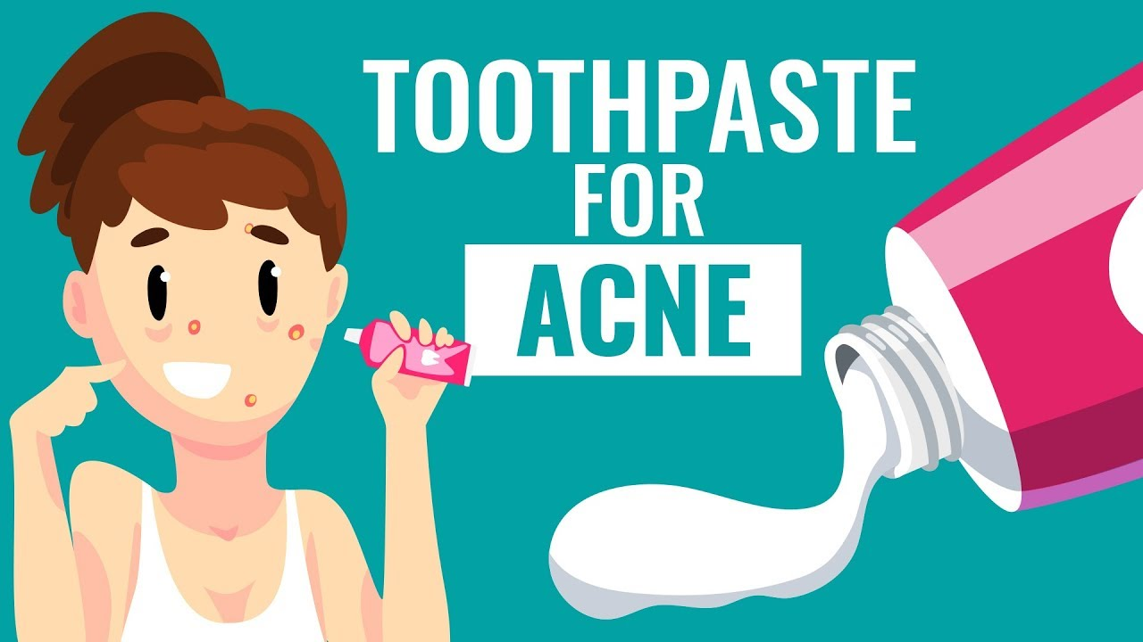 Is Using Toothpaste For Acne Safe Know The Truth Youtube