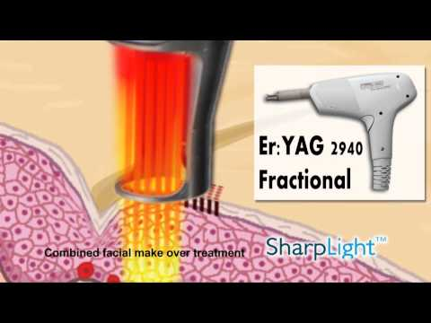 Er:Yag 2940 Fractional - how does it work?