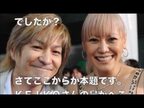 【超絶悲痛】globe KEIKOさんの鼻がヤバすぎる・・・写ってしまった!まるで別人【衝撃】