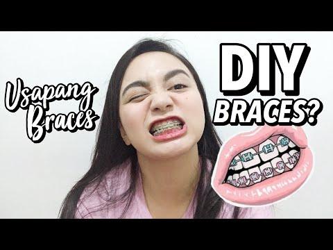 Usapang Braces (DIY BRACES?)   Nikki Valiente