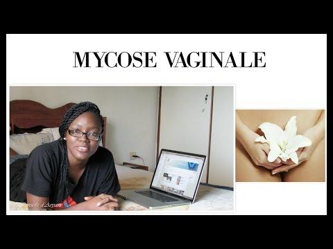 mycose vaginale comment l 39 eviter et la soigner youtube. Black Bedroom Furniture Sets. Home Design Ideas