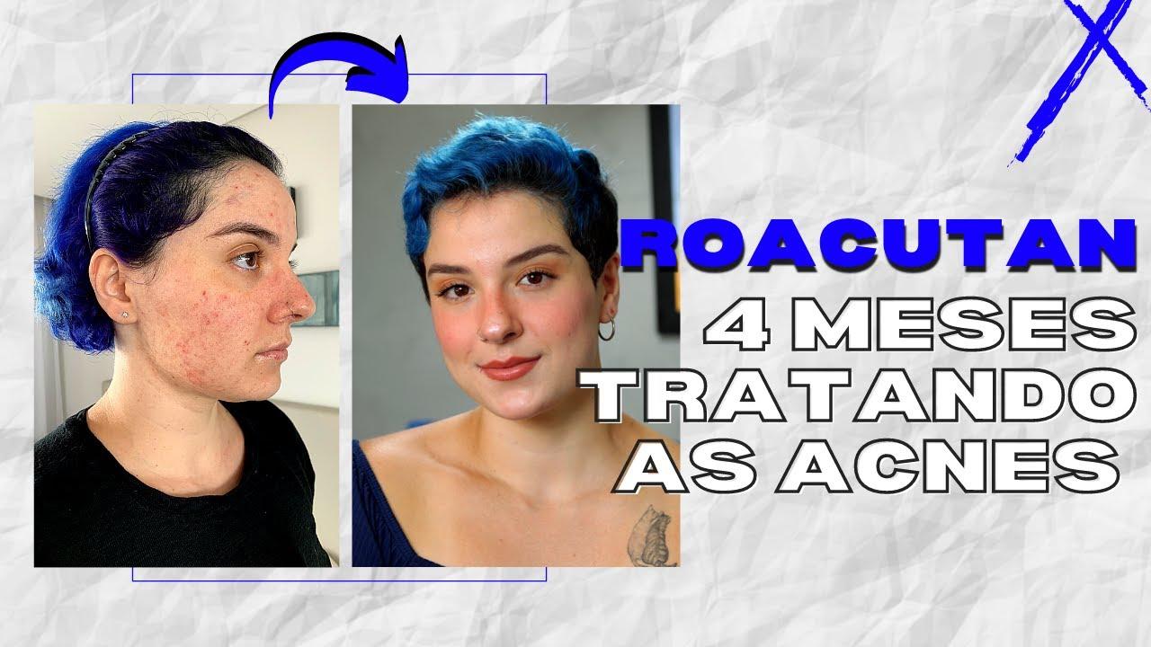 4 MESES DE ROACUTAN | Tive muitos colaterais?