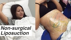 Liposuction Without Surgery + Coolsculpting @ LaserAway