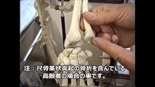 橈骨遠位端部骨折解説(その壱)
