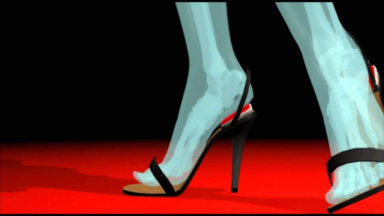 Doctor's Answer to High Heel Pain: The Talus Heelbed by ...