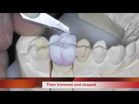 How we make a Zirconia Crown
