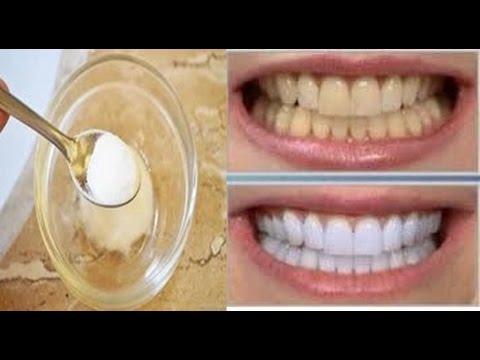 Como Clarear Os Dentes Em 1 Minuto Gastando Pouco Com 3 Receitas