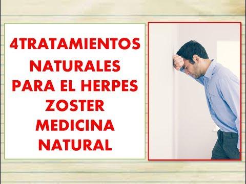 herpes ZOSTER Remedios CASEROS para DOLOR ? herpes ZOSTER tratamiento NATURAL para dolor