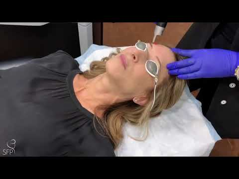 PICOSURE LASER FOR SUN DAMAGE - DR. PHILIP SOLOMON TORONTO