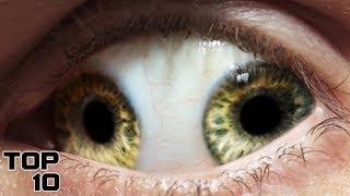Top 10 Scariest Human Eyes