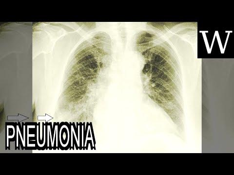 PNEUMONIA - WikiVidi Documentary