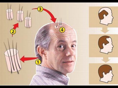 Мумие — применение мумие от растяжек, для волос, лечение