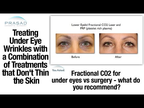 Fractional CO2 Laser is a Good Wrinkle Treatment, but can Thin the Skin if Overused