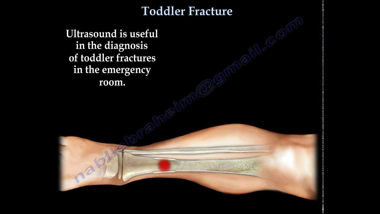 Toddler Fracture Tibial Fracture In A Child Everything You Need To Know Dr Nabil Ebraheim Youtube