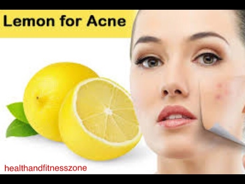 BEST REMEDY FOR ACNE TREATMENT   PIMPLES TREATMENT   Health and Fitness Zone