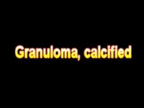What Is The Definition Of Granuloma, calcified - Medical Dictionary Free Online Terms